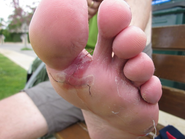 Mike's Foot