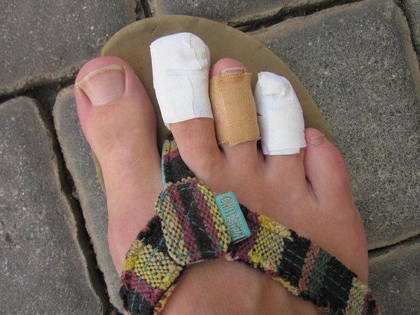 My bandaged up feet